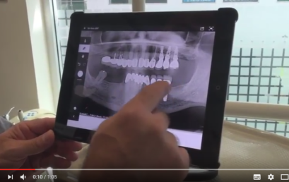 Tutorial: Options for lower Dental Implants by Doctor German Arzate