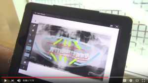 Tutorial: Cases of receding gums and the All-on-4 dental implant protocol