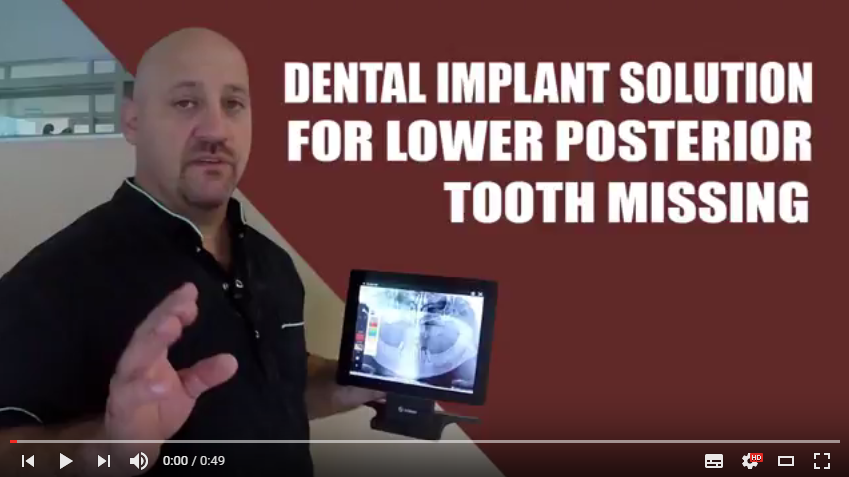 Tutorial: Dental Implant Option for Lower Posterior tooth missing