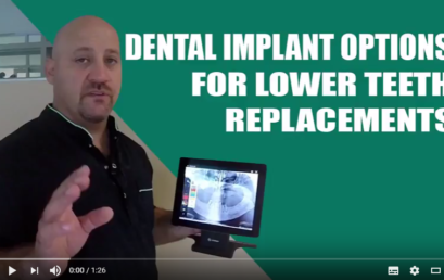 Tutorial: Dental Implant Options for Teeth Replacements