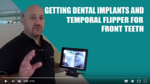 Tutorial: Getting Dental Implants and Temporal Flipper
