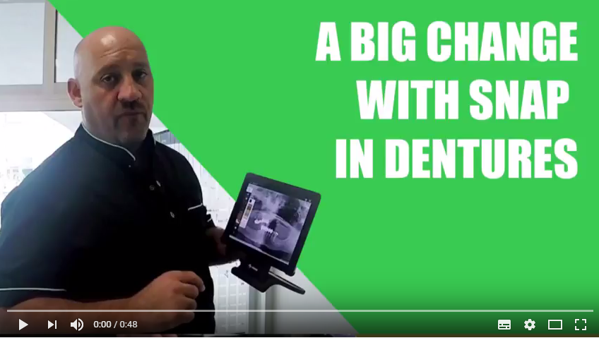 Tutorial: A big change with Snap in Dentures