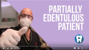 Tutorial: Partially edentulous case