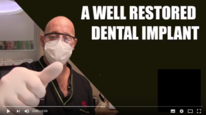 Tutorials: A well restored dental implant
