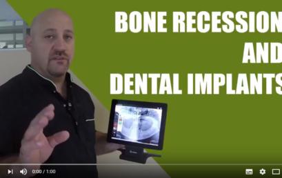 Tutorials: Bone recession and dental implants
