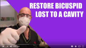 Tutorials: Restore bicuspid lost to a cavity