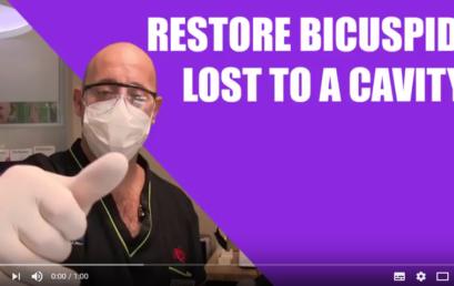 Tutorials: Restore bicuspid lost to a cavity